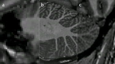 MRI data showing the cerebellum in vivo